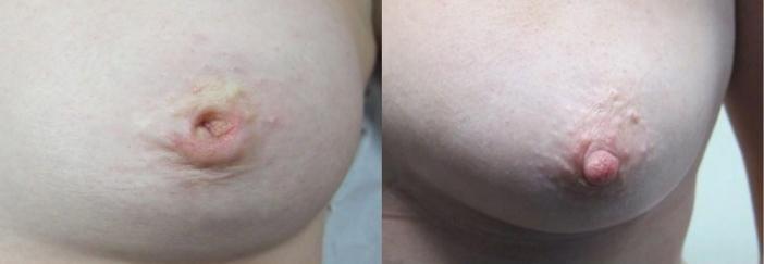 Inverted nipples girl, very short bikini woldrecord