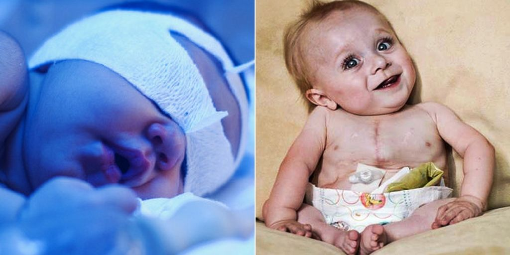 Diseases Baby Is Most Vulnerable To Right After Birth ...