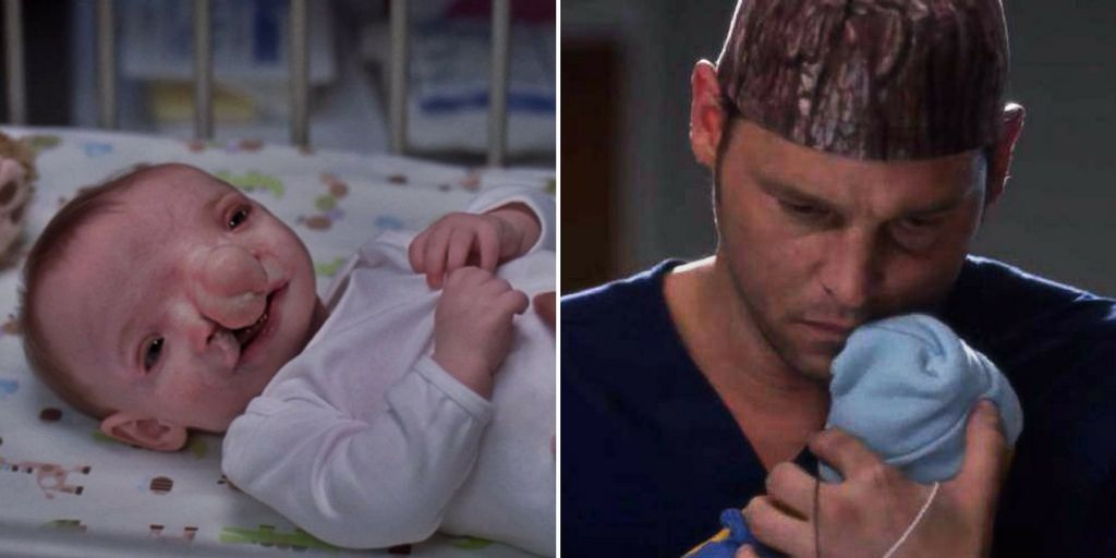 Grey S Anatomy Baby Conditions That Can Actually Happen